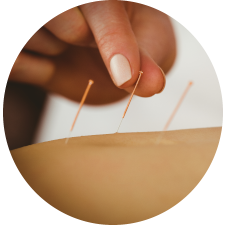 treatment acupuncture